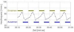 BioSign -Gute HRV Messung