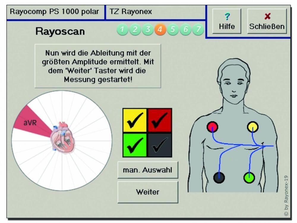Herzrhythmus-Herzratenvariabilität